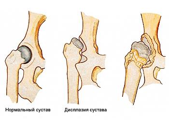 прчины отёка рук и боли в суставах